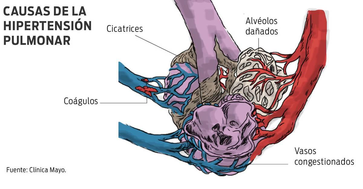 Síntomas de hipertensión pulmonar remedios caseros